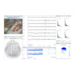 EB Neuro GALILEO SUITE SOFTWARE
